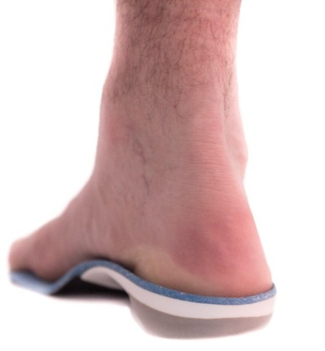 orthotics back view