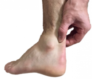 Achilles Tendinopathy - The pain at the