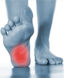 Policeman's Foot Syndrome - Perform