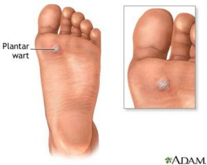 wart foot bleeding)