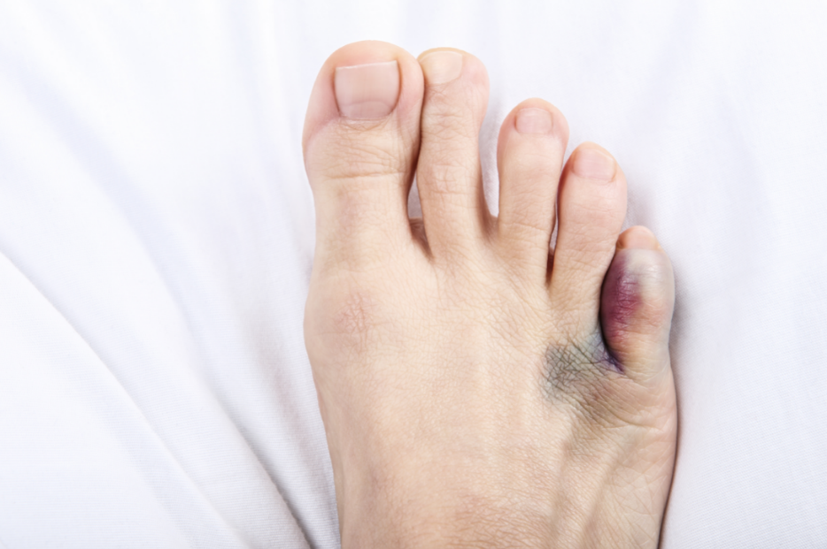 I Think My Toe Is Broken. What Should I Do?